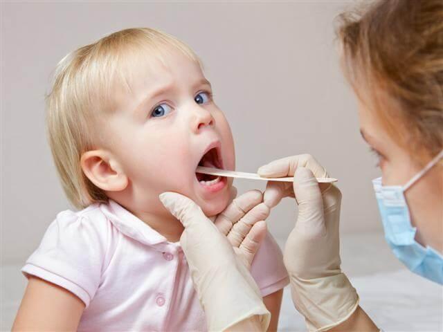 Trường hợp bệnh nhân không nên cắt amidan