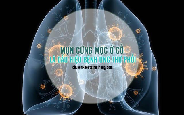 Mụn cứng mọc ở cổ là dấu hiệu bệnh ung thư phổi