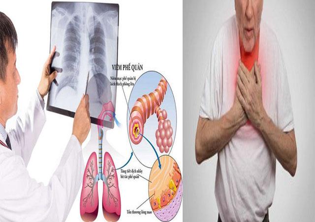 Viêm phế quản - Biến chứng của bệnh viêm họng hạt