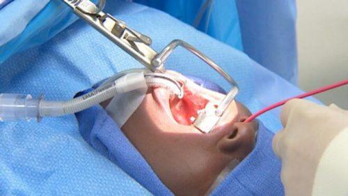 Điều trị viêm amidan bằng phẫu thuật