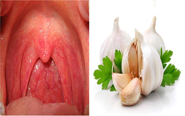Chữa bệnh viêm họng hạt bằng củ tỏi
