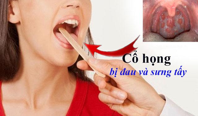 Viêm họng khiến cổ họng bị đau và sưng tấy