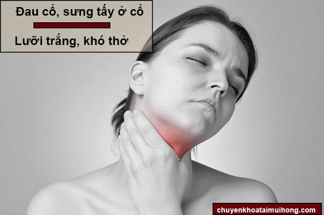 Triệu chứng bệnh viêm amidan