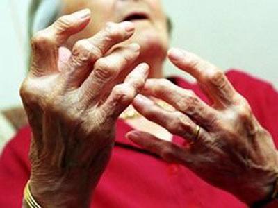 Viêm họng có thể gây ra biến chứng thấp khớp