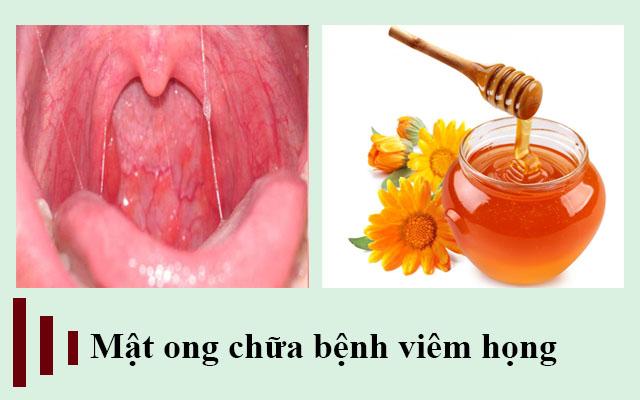 Mật ong chữa bệnh viêm họng