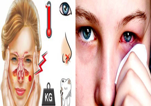 Mắt bị sưng do bệnh viêm xoang gây ra