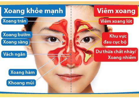 Phương pháp điều trị bệnh viêm đa xoang