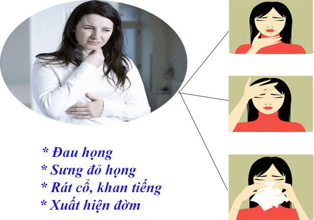 Người bệnh viêm họng mãn tính thường đau rát cổ họng.