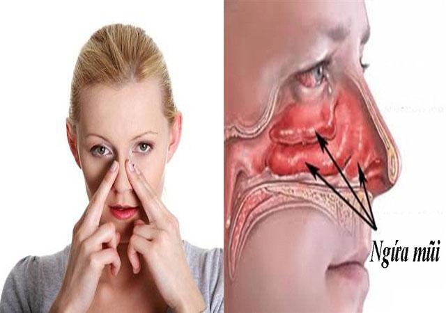 Viêm mũi dị ứng gây ngứa mũi
