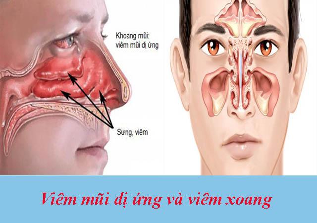 Phân biệt bệnh viêm mũi dị ứng và viêm xoang