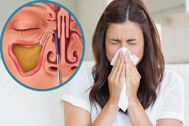 Viêm xoang gây ra tình trạng ngạt mũi