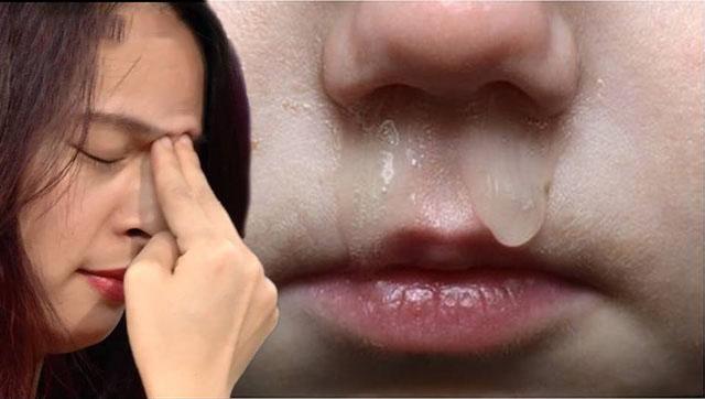 Chảy nước mũi - Biểu hiện của bệnh viêm xoang