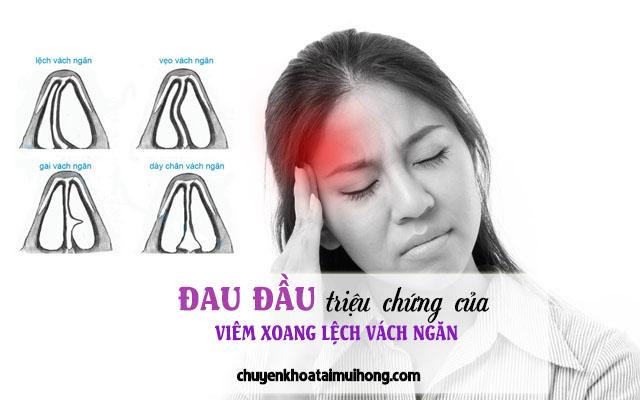 Viêm xoang lệch vách ngăn gây đau đầu