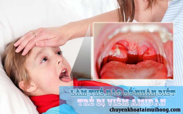Bệnh viêm amidan ở trẻ em