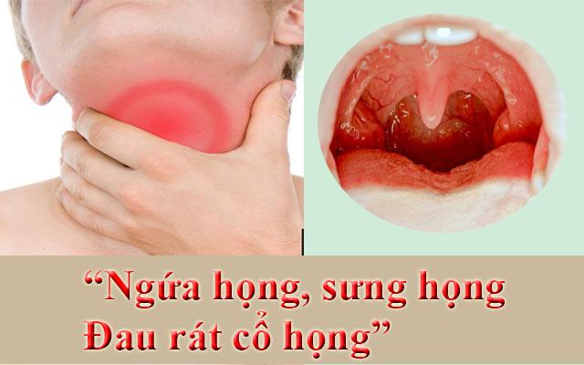 Triệu chứng bệnh viêm họng