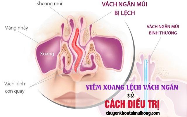 Triệu chứng viêm xoang lệch vách ngăn và cách điều trị
