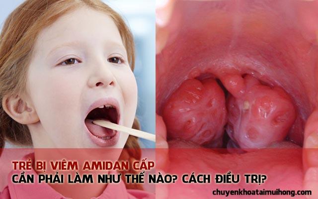 Bệnh viêm amidan cấp ở trẻ em