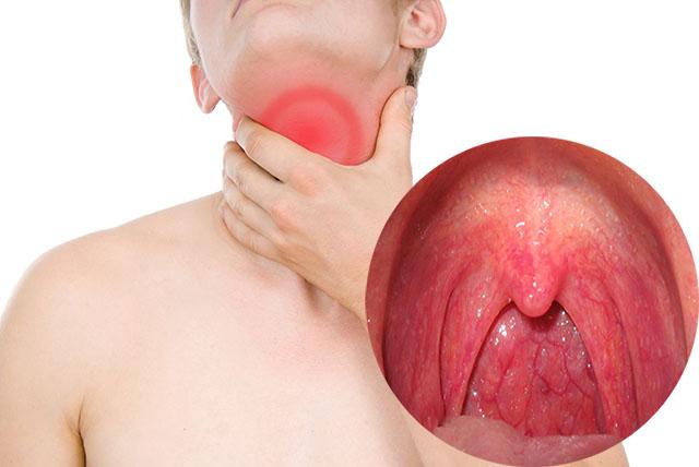 Một số kiến thức về bệnh viêm họng