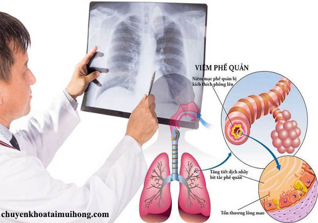Tìm hiểu về bệnh viêm phế quản