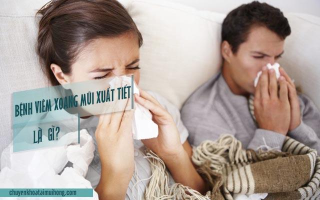 Bệnh viêm xoang mũi xuất tiết