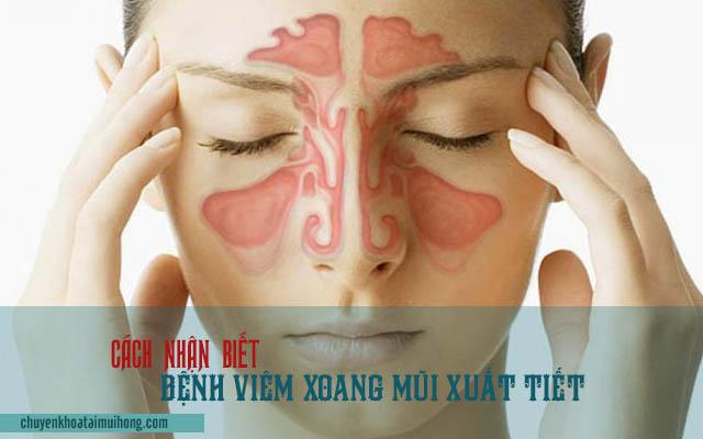 Cách nhận biết bệnh viêm xoang mũi xuất tiết