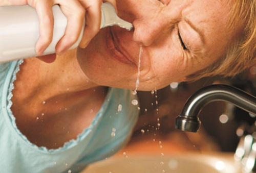 điều trị bệnh viêm mũi xoang xuất tiết 1