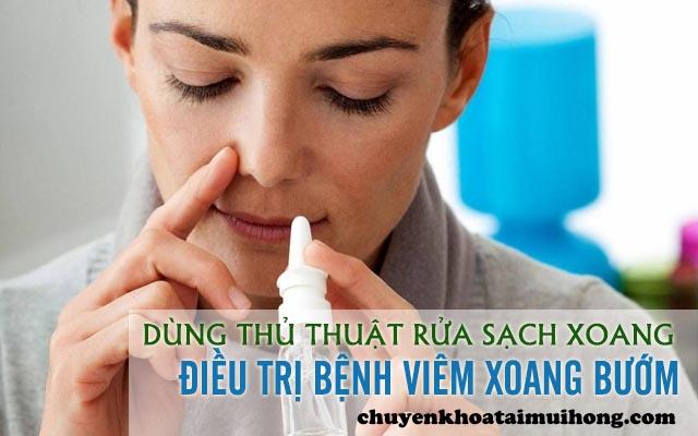 Dùng thủ thuật rửa sạch xoang điều trị viêm xoang bướm