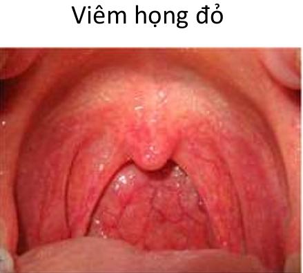 viem-hong-do-la-gi