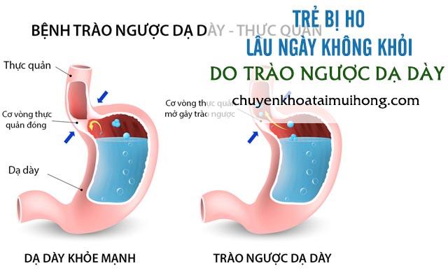 Trào ngược dạ dày thực quản cũng là nguyên nhân chính gây ho kéo dài