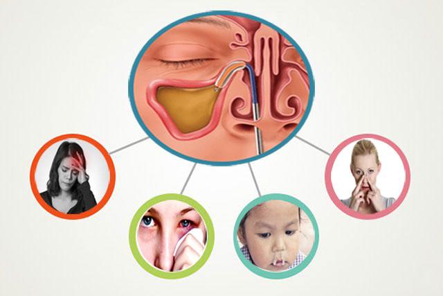 Những triệu chứng điển hình của bệnh viêm xoang