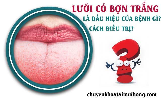 Lưỡi có bợn trắng là dấu hiệu bệnh gì? Nên làm gì để điều trị?
