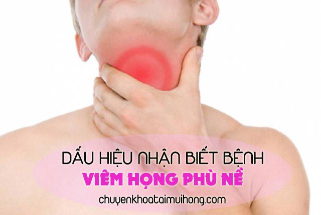 Dấu hiệu nhận biết về bệnh viêm họng phù nề
