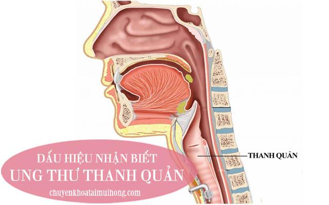 Dấu hiệu bệnh ung thư thanh quản