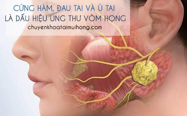 Ung thư vòm họng gâycứng hàm, đau tai và ù tai