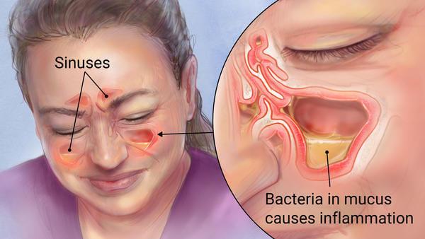 Cây lá bỏng có thể chữa trị bệnh viêm xoang