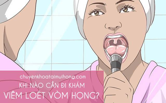 Khi nào cần đi khám viêm loét vòm họng?