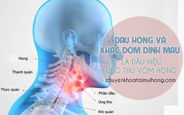 Đau họng và khạc đờm dính máu là dấu hiệu ung thư vòm họng