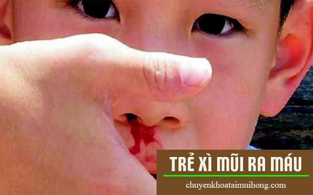 Thận trọng khi trẻ bị xì mũi ra máu