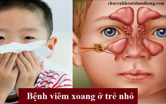 Viêm xoang khiến trẻ xì máu ở mũi
