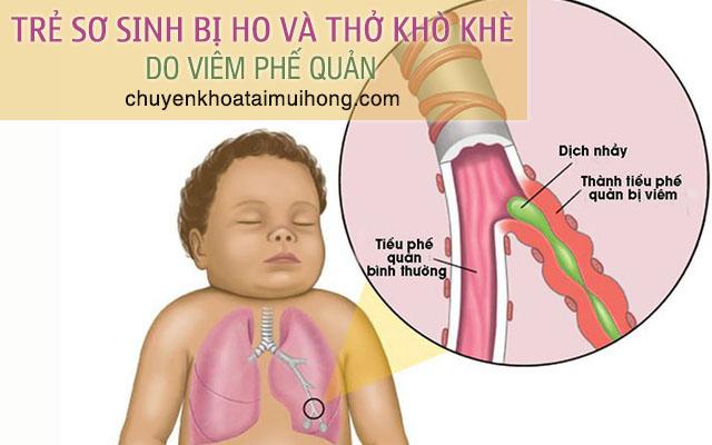Bệnh viêm phế quản khiến trẻ sơ sinh bị ho và thở khò khè