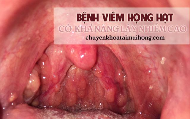 Bệnh viêm họng hạt có khả năng lây nhiễm vô cùng cao
