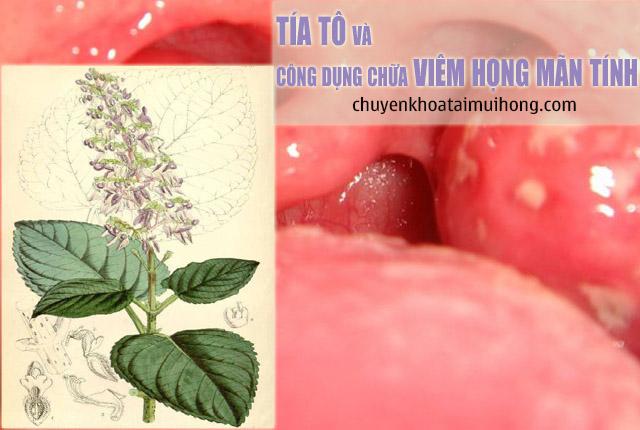 Tía tô và công dụng chữa bệnh viêm họng mãn tính
