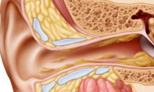 Đau tai khi nuốt - Biểu hiện bệnh gì -1