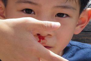 Cách trị chảy máu mũi nhanh nhất -1