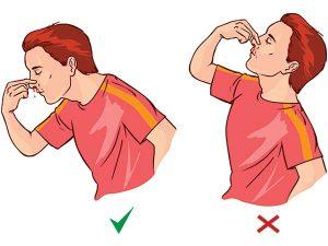 Cách trị chảy máu mũi nhanh nhất -2