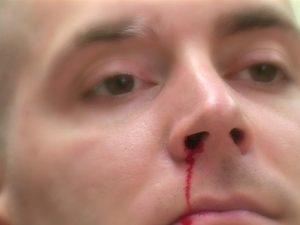 Chảy máu mũi là bệnh gì có nguy hiểm không ? -1