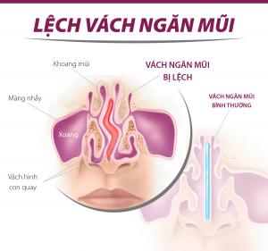 Vẹo lệch vách ngăn mũi có nên phẫu thuật không ? -1