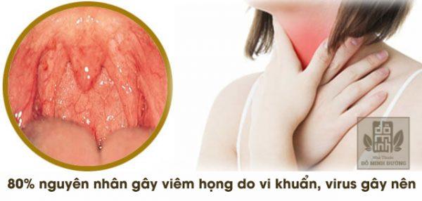 80% nguyên nhân gây bệnh là do vi khuẩn và virus