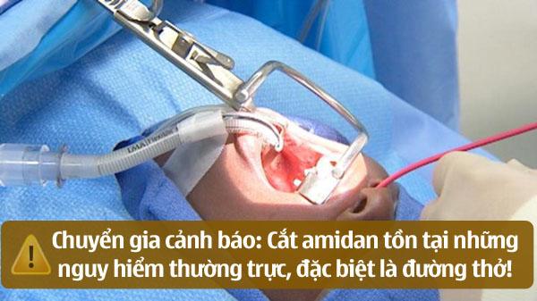 Cần thận trọng trước khi quyết định cắt amidan
