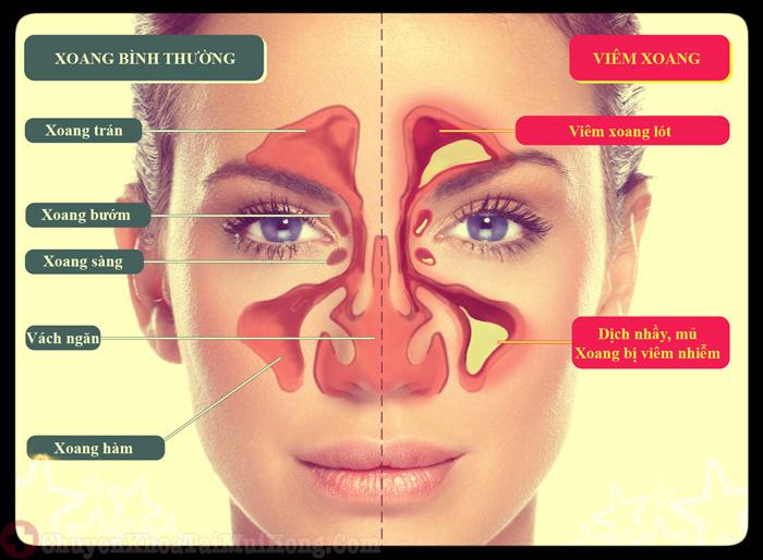 cấu tạo xoang mũi
